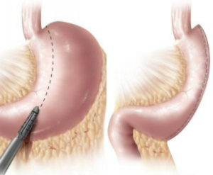 Gastric sleeve