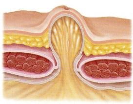 operatie litiaza biliara laparoscopic pret