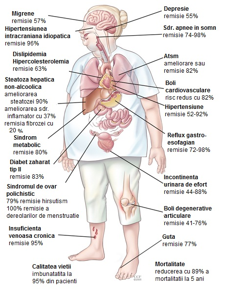 Remisia complicatiilor dupa gastric sleeve