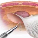 Tratament chirurgical hernia ombilicala - schema