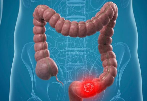 Titlu - cancerul colorectal